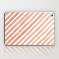 Tan Lines Laptop & iPad Skin