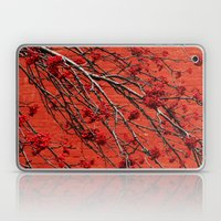 ...or Without Laptop & iPad Skin