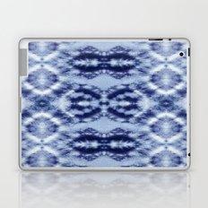 Laurel Canyon Tie-Dye Laptop & iPad Skin
