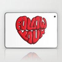 Follow You're Laptop & iPad Skin