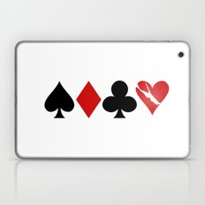 Love is a Game Laptop & iPad Skin