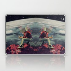 Figuring Out Ways To Escape Laptop & iPad Skin