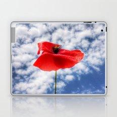 one and amazing Laptop & iPad Skin