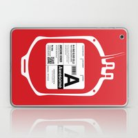 My Blood Type is A, for Awesome! Laptop & iPad Skin