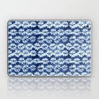 Shibori two Laptop & iPad Skin