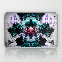 XLOVA2 Laptop & iPad Skin