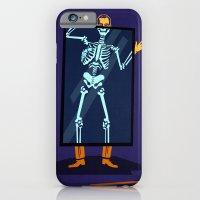 X-Ray iPhone 6 Slim Case