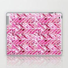 Cherry Bomb Chevron Laptop & iPad Skin