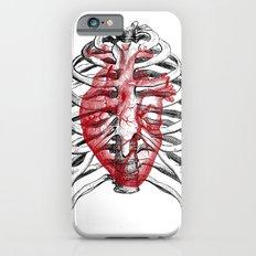 Heart Bones iPhone 6 Slim Case