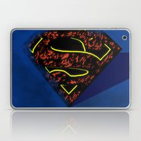 The Greatest Of Them All Laptop & iPad Skin