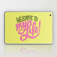 Welcome To My Life Laptop & iPad Skin
