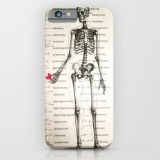 Skeleton In Love iPhone 6 Slim Case