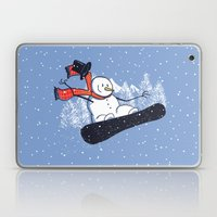 Snow Ahead! Laptop & iPad Skin