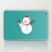 Day 21/25 Advent - Nose Installation Laptop & iPad Skin