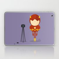 My Camera Hero! Laptop & iPad Skin