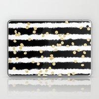 Modern black watercolor stripes chic gold confetti Laptop & iPad Skin