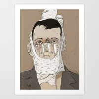Rhinoplasty Art Print