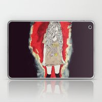 üss Laptop & iPad Skin