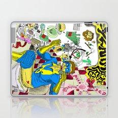 Alarme Laptop & iPad Skin