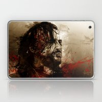 Blood Of The Dogs Laptop & iPad Skin