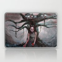 Helpless Laptop & iPad Skin