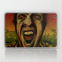 We Hungry Laptop & iPad Skin