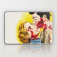 Eternal Love Laptop & iPad Skin