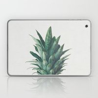 Pineapple Top Laptop & iPad Skin