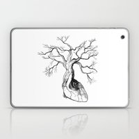 Love Root Laptop & iPad Skin