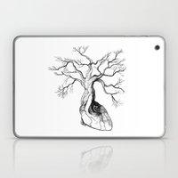 Love Root Laptop & iPad Skin