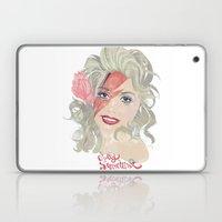 Dolly Stardust Laptop & iPad Skin