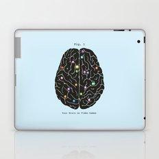 Your Brain On Video Games Laptop & iPad Skin