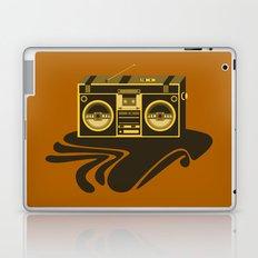 Radio Head Laptop & iPad Skin