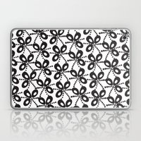 Quirky Black & White Laptop & iPad Skin
