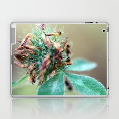 One of a Kind Laptop & iPad Skin