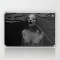 Choking Laptop & iPad Skin