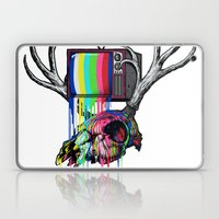 COLORS TV Laptop & iPad Skin
