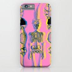 The Fancy Dead iPhone 6 Slim Case