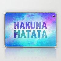 Hakuna Matata III Laptop & iPad Skin