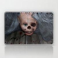 Fibrodysplasia Ossifican… Laptop & iPad Skin