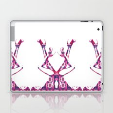 Heels Laptop & iPad Skin