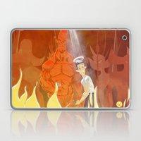Need For Backup? Laptop & iPad Skin