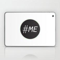 Follow Me Laptop & iPad Skin