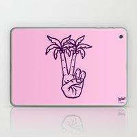 Peace Palms Laptop & iPad Skin