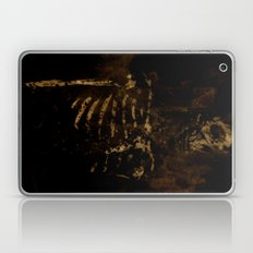 Dark Room #2 Laptop & iPad Skin