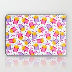 French Fries junk food party time razzle neon bright happy fun kids children pop art pattern foods Laptop & iPad Skin