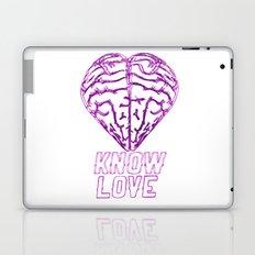 Know Love Laptop & iPad Skin
