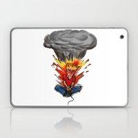 Intense Gamer Laptop & iPad Skin