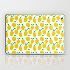 Lemons - Tropical Citrus… Laptop & iPad Skin