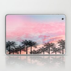 Summer Palm Tree #Society6 #Buyart #Decor Laptop & iPad Skin
